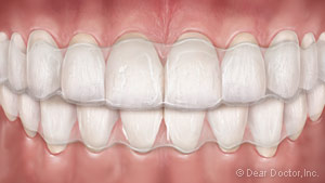 image of teeth with clear aligners