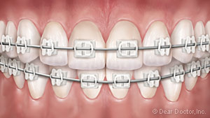 image of teeth with clear braces