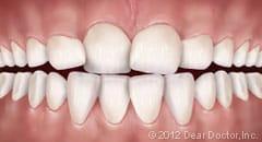 image of crowding teeth