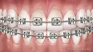 image of teeth with metal braces