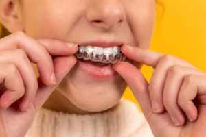 WhicSmile Direct Club vs orthodontist: Which should I choose for Invisalignh should I choose for Invisalign - an orthodontist or Smile Direct Club?