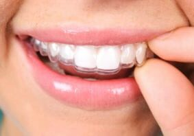 Close up of a person putting in a retainer.